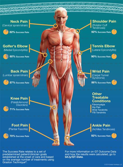 graston technique symptoms